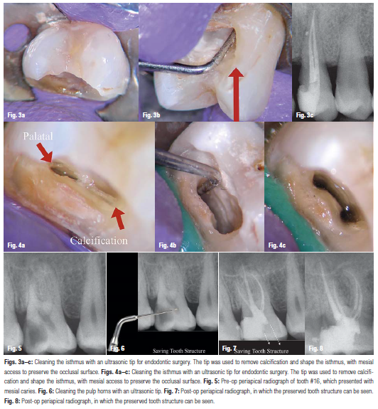 Minimally invasive access cavity preparation in endo  - Latif