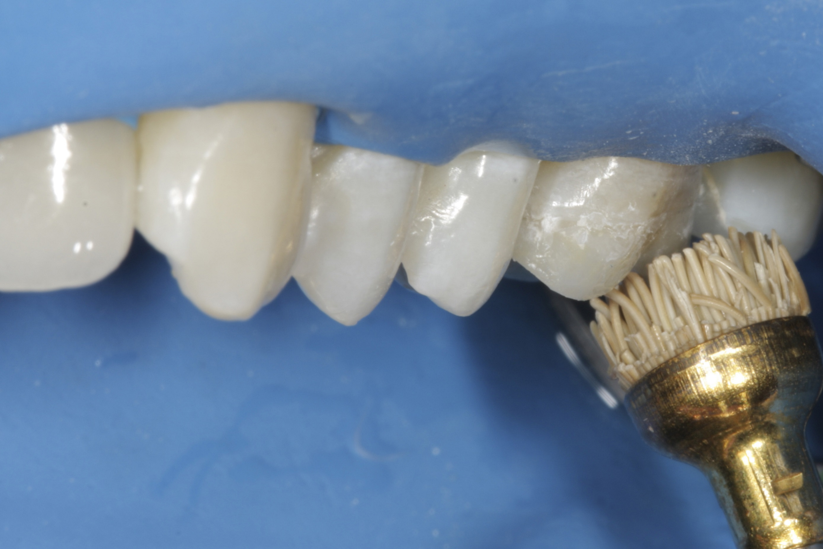 Restoration of teeth - methods. Treatment of canals